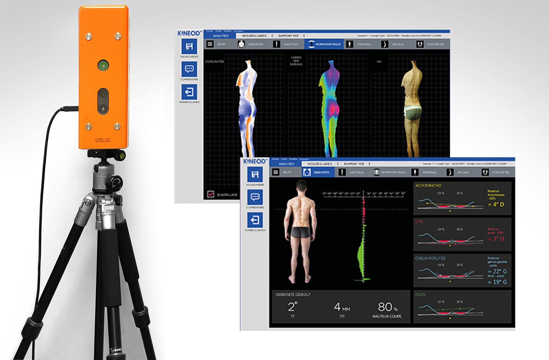 Kinéod scan 3D Forlini Orthopédie